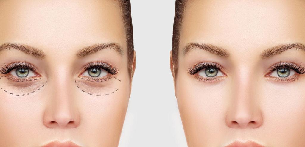 Borse sotto gli occhi: intervento laser e altri rimedi
